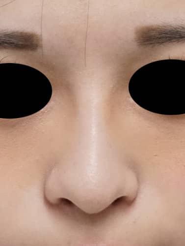 鼻プロテーゼ 1週間後のAfterの写真