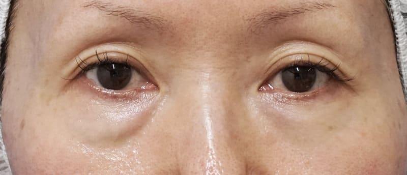 ダウンタイムの少ない目の下の若返り手術 1週間後のBefore写真
