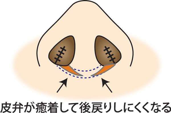 鼻翼縮小(フラップ法)癒着