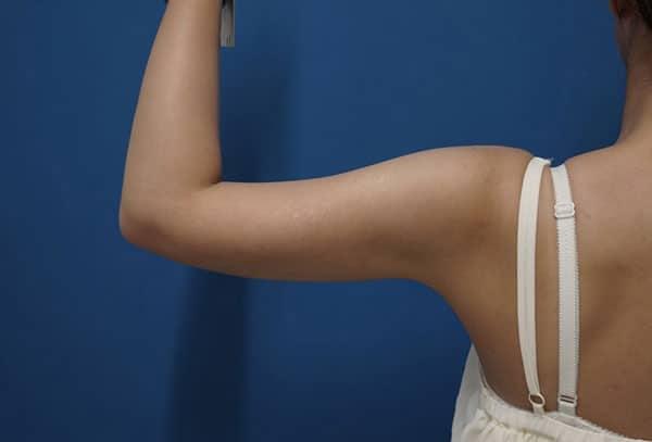 スタッフさんの二の腕(上腕)脂肪吸引 2か月後のAfterの写真