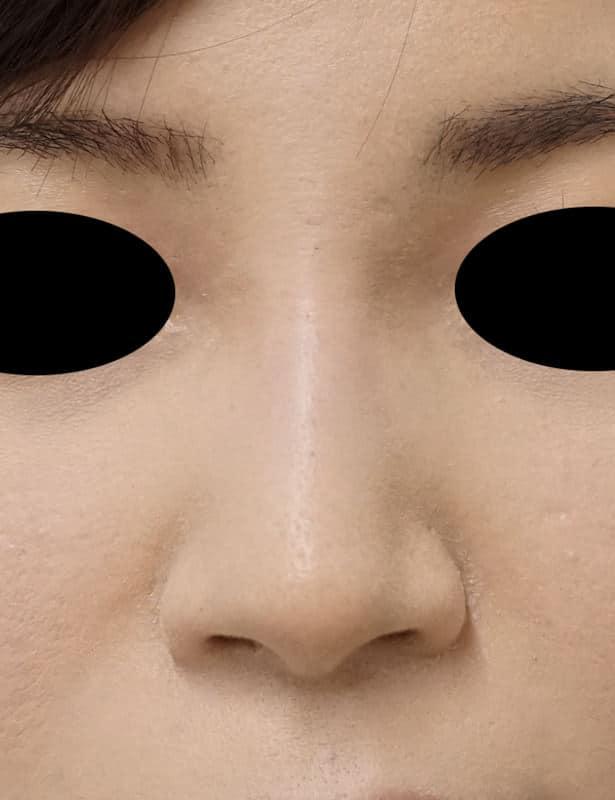 高濃度ヒアルロン酸(クレヴィエル) 鼻・アゴ 処置直後のAfterの写真