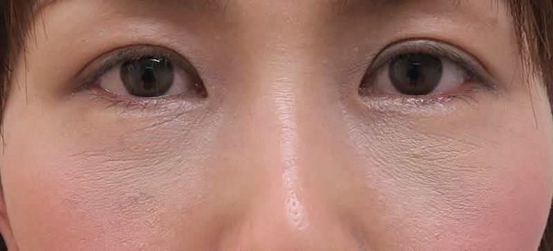 目の下くまやたるみを解消!(裏ハムラ) 1ヶ月後のAfterの写真