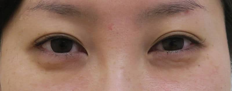 他院抜糸(8点)+もとびアイプラチナム 手術直後のBefore写真
