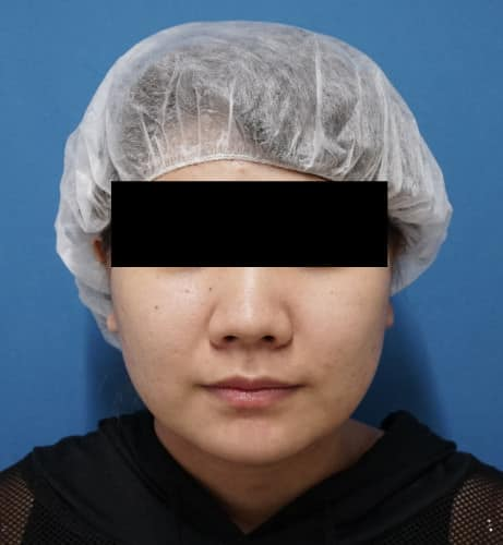 ホホ・アゴ脂肪吸引、アラガン強力小顔ボトックス  3ヶ月後のBefore写真