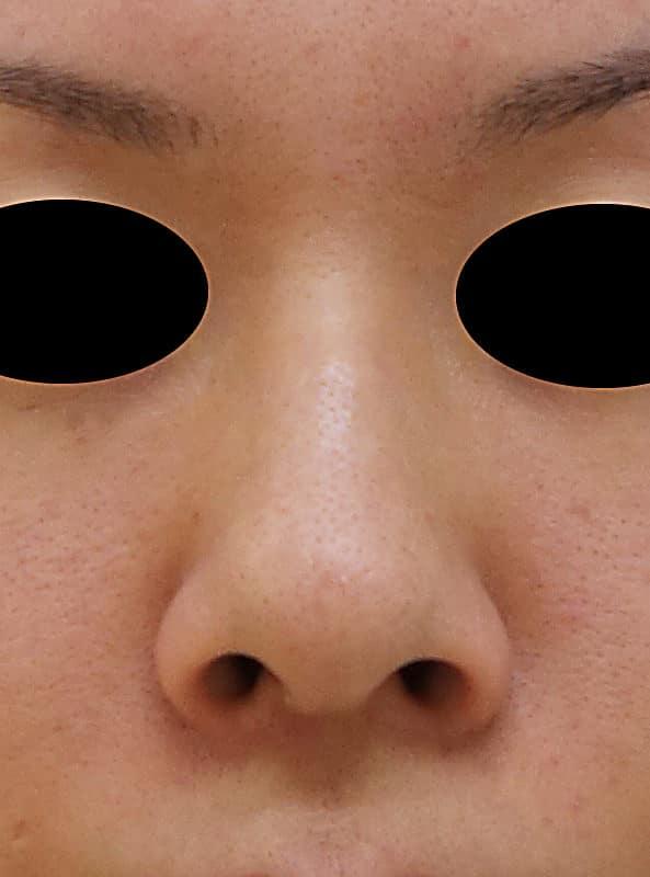 鼻中隔延長、I型プロテーゼ、小鼻縮小(flap法)の1か月後のBefore写真