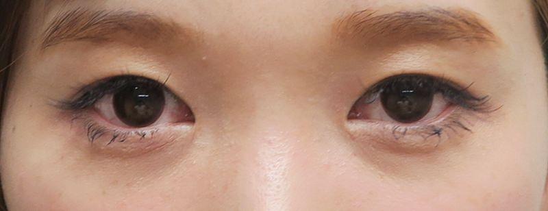 自然です!涙袋のヒアルロン酸 処置直後のBefore写真