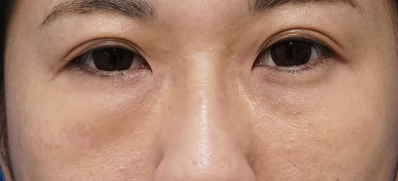 右他院目の下脂肪注入後しこり修正(ハムラ法)  手術前⇒1週間⇒1ヶ月後のBefore写真