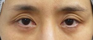 眼瞼下垂手術後⇒他院手術⇒修正手術 施術前