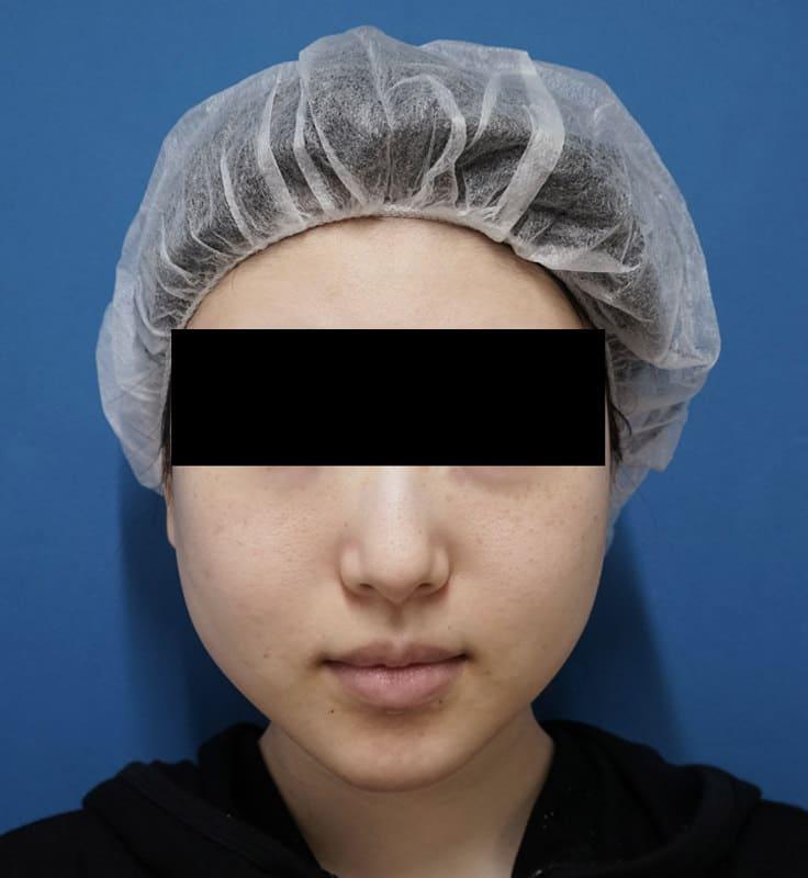 超強力小顔ボトックス 3ヶ月後のBefore写真