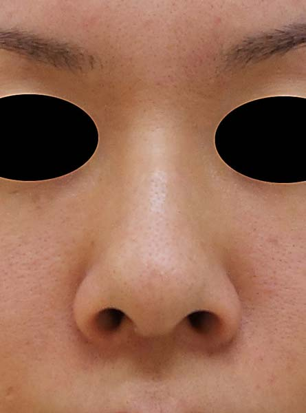鼻中隔延長、鼻尖形成、隆鼻術(プロテーゼ)、小鼻縮小(flap法) 1週間後のBefore写真