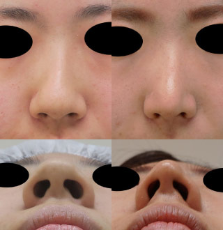 小鼻を小さく 処置前後 flap法