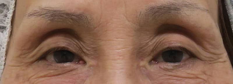 かなりのくぼみ目に脂肪注入 手術直後のBefore写真