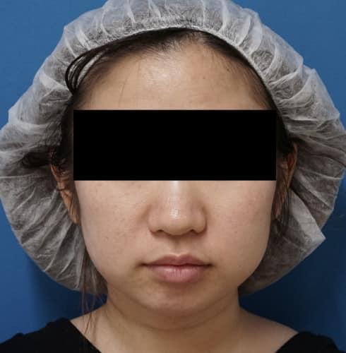 切らない強力小顔3点セット 3ヶ月後のBefore写真
