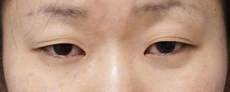 全切開、眼瞼下垂、目頭切開(Z形成) 3か月後のBefore写真