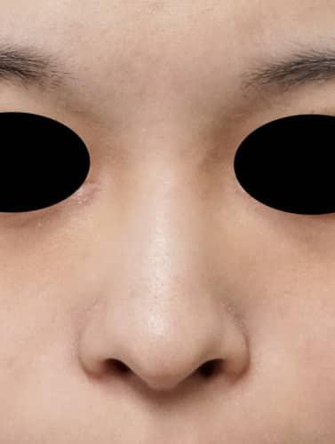 鼻プロテーゼ 1週間後のBefore写真