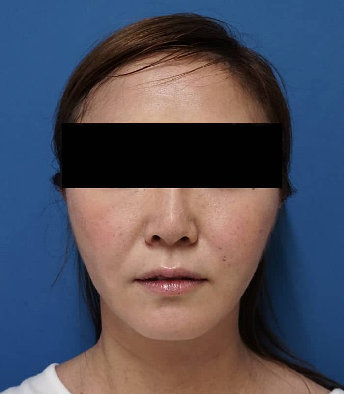 1回ですっきり小顔に | ホホ・アゴ脂肪吸引 3ヶ月後のAfterの写真