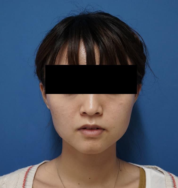 アラガン社強力小顔ボトックス 1ヶ月後のAfterの写真