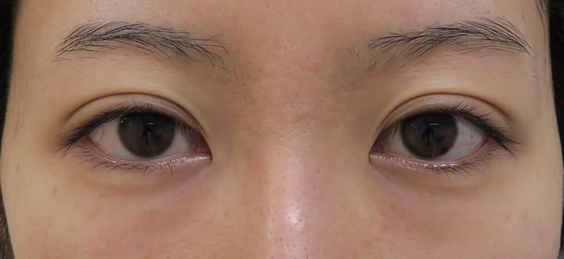 下眼瞼下制(たれ目術) 1ヶ月後のBefore写真