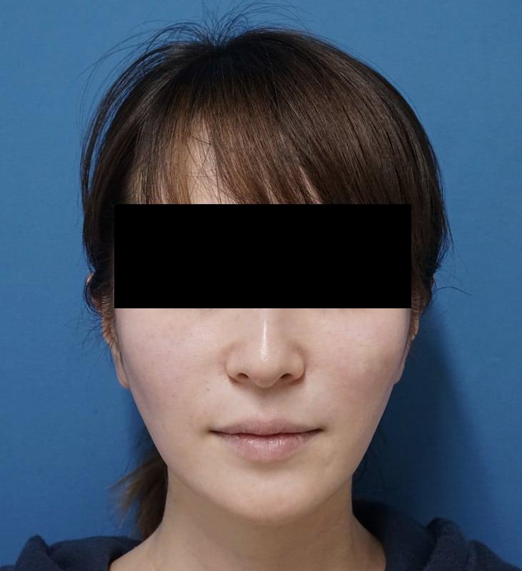 腫れずにしっかりリフトアップ|ミントリフトミニ 手術直後のAfterの写真