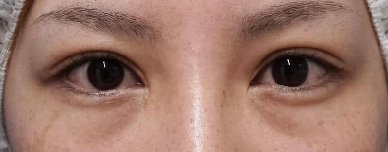 抜糸8点、脂肪・眼輪筋除去、広めの埋没法 手術直後の腫れは??のBefore写真