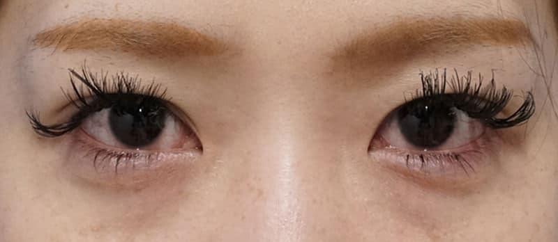 切らない眼瞼下垂 7ヶ月後のAfterの写真