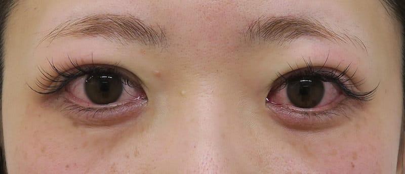 もとびアイプラチナム 手術前~3ヶ月後の経過のAfterの写真