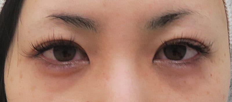 目を明るくするプチ整形 切らない眼瞼下垂術 10日後のBefore写真