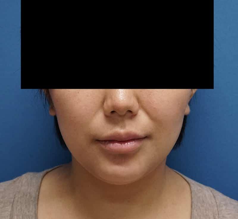 ヒアルロン酸(ほうれい線) 処置直後のBefore写真