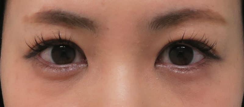 目を明るくするプチ整形 切らない眼瞼下垂術 10日後のAfterの写真