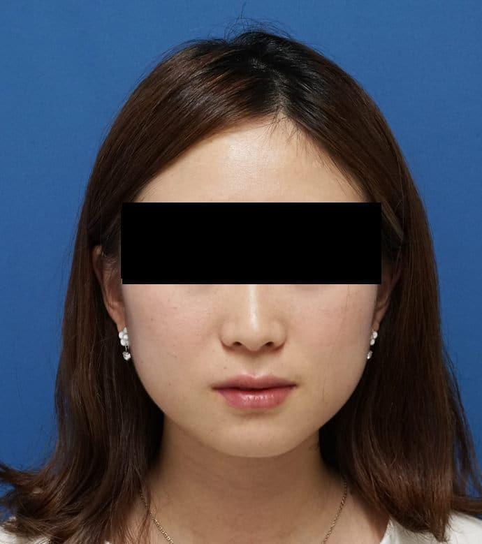 アラガン超強力小顔ボトックス 1ヶ月後のAfterの写真