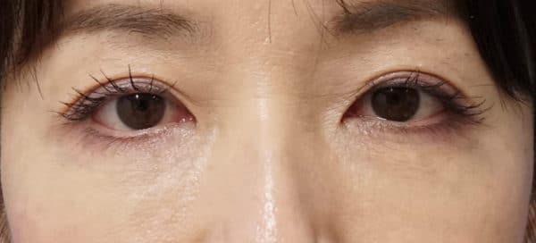 目の下のプチ若返り|ベビーコラーゲン療法 1週間後のAfterの写真