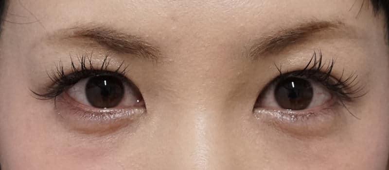 切らない眼瞼下垂 半年後のAfterの写真