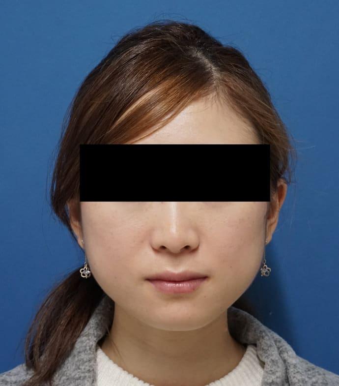 アラガン超強力小顔ボトックス 1ヶ月後のBefore写真
