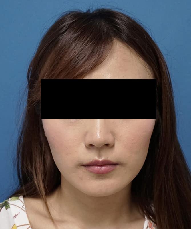プチ小顔セット(BNLS10cc+アラガン強力小顔ボトックス)  1か月後のAfterの写真