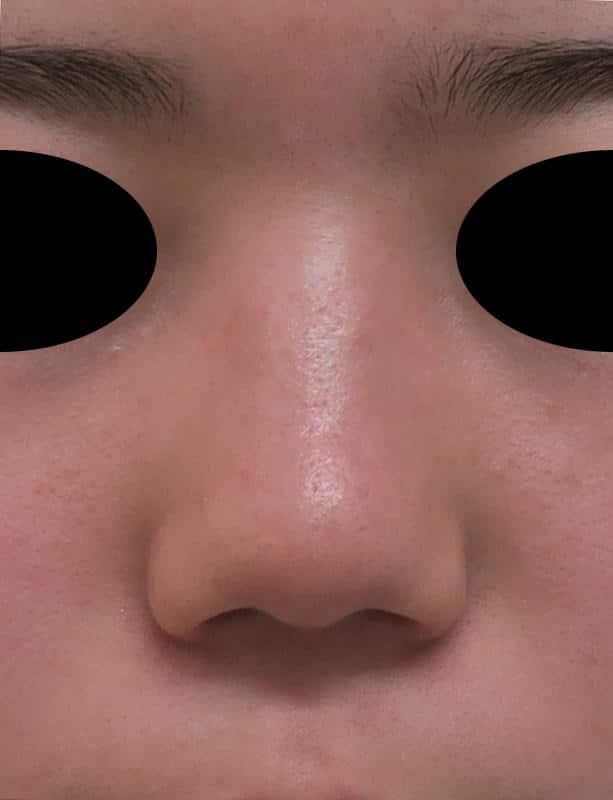 団子鼻修正、豚鼻修正、小鼻縮小(flap法) 1か月後のBefore写真