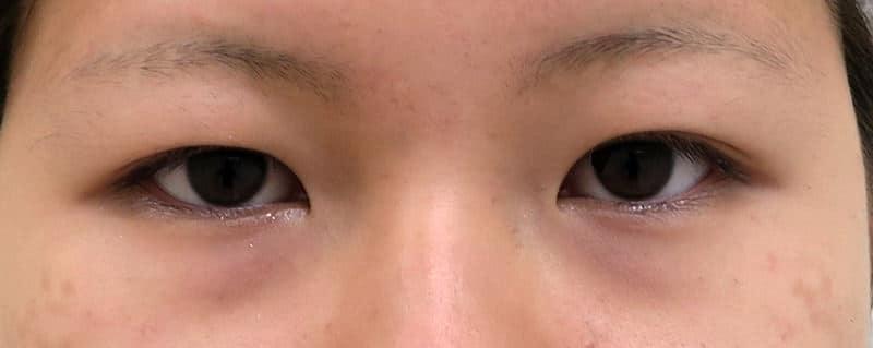 腫れにくい二重術(3点止め) 手術前~3ヶ月後の経過のBefore写真