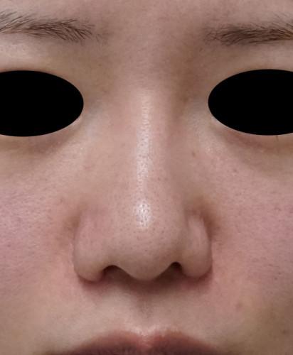鼻尖形成(3D法)、軟骨移植 3ヶ月後のBefore写真