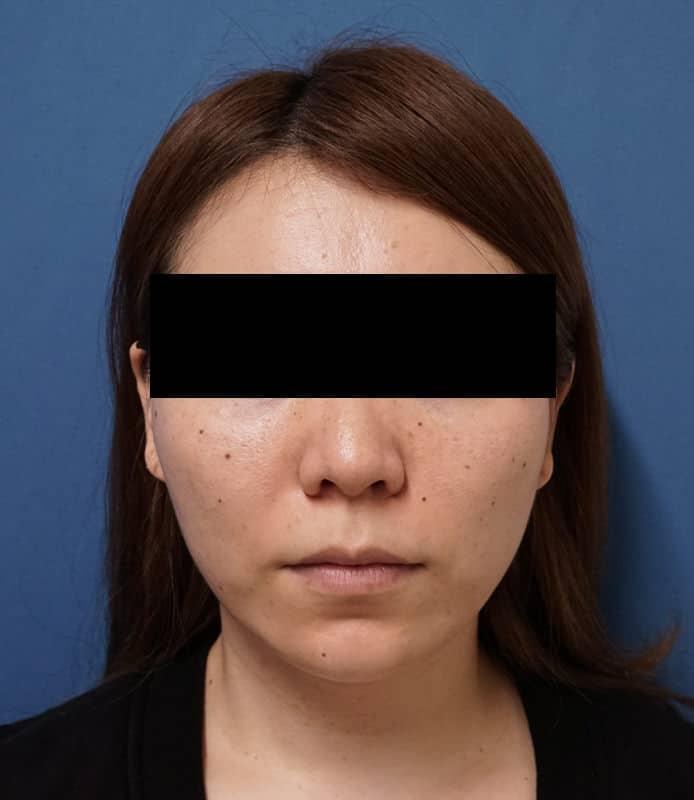驚きの小顔治療!|エラボトックス 1か月後のAfterの写真