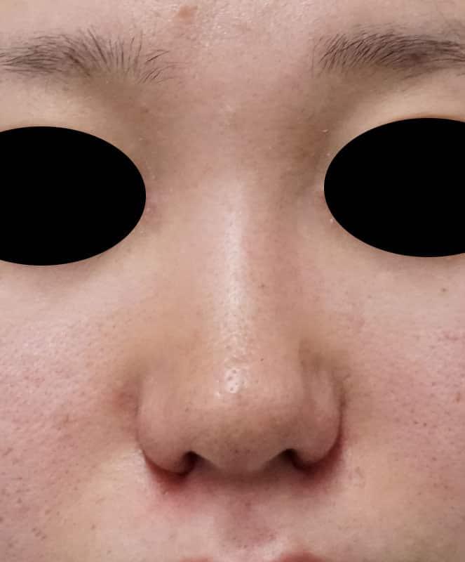 小鼻縮小(flap法) 手術直後のAfterの写真