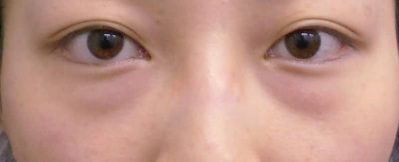 目の下のクマを解消!(目の下の脂肪とり+脂肪注入)1か月後のBefore写真