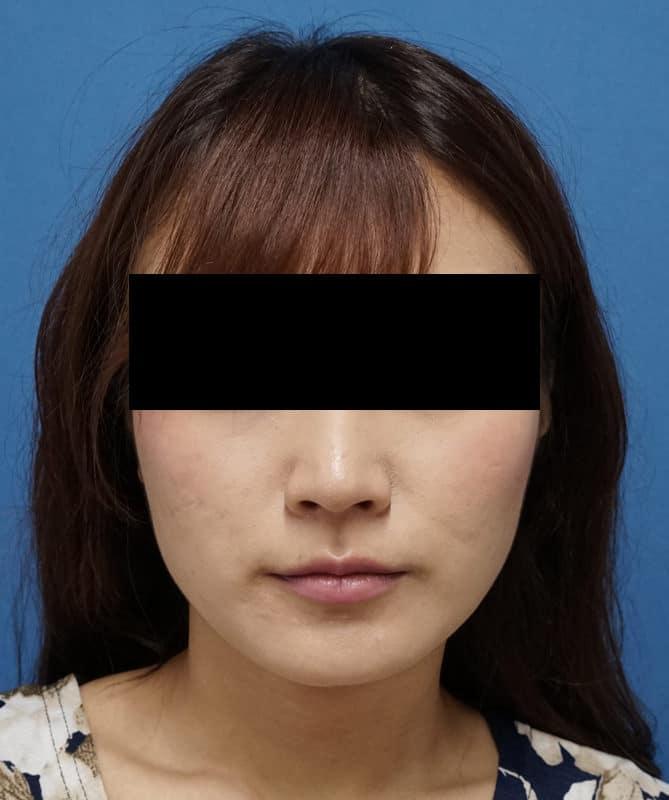 プチ小顔セット(BNLS10cc+アラガン強力小顔ボトックス)  1か月後のBefore写真