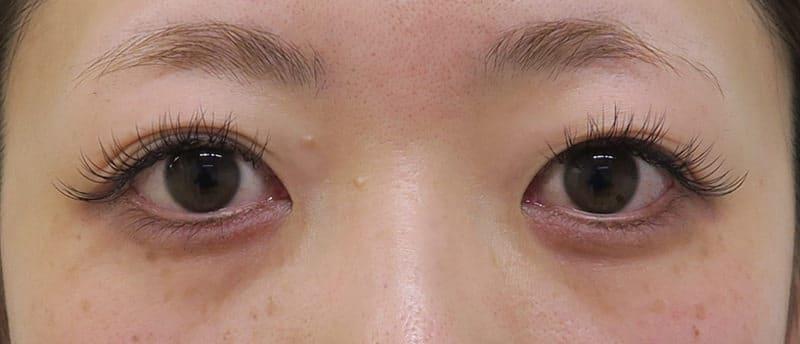もとびアイプラチナム 手術前~3ヶ月後の経過のBefore写真