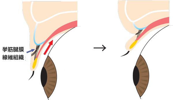 目を閉じた時と開いた時の二重の構造(断面図)
