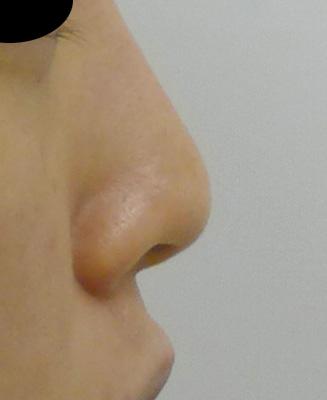 他院修正、鼻尖形成、軟骨移植 1ヶ月後のBefore写真