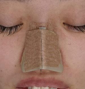 鼻尖軟骨移植 ギプス固定