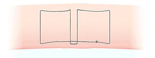 二重埋没法(スマートバランス)かけ方の図