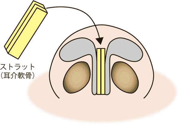 鼻尖軟骨移植(ストラット)解説
