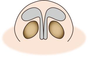 鼻翼軟骨(下から)
