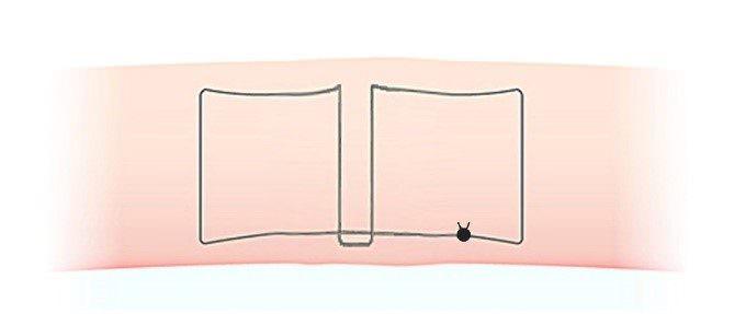 二重埋没法(スマートバランス)のかけ方