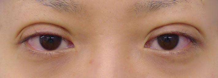 二重術後の腫れた目の画像